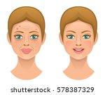 problems skin | Shutterstock .eps vector #578387329