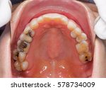 many teeth with amalgam filling ... | Shutterstock . vector #578734009