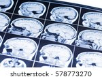 mri of the brain. snapshot | Shutterstock . vector #578773270