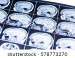 mri of the brain. snapshot | Shutterstock . vector #578773270