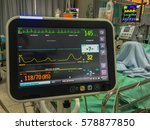 Stock photo vital signs monitoring display in icu 578877850