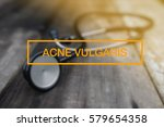 Small photo of HEALTH CONCEPT: ACNE VULGARIS