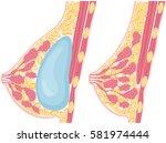 woman breast implant cross... | Shutterstock .eps vector #581974444