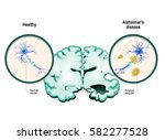 human brain  in two halves ... | Shutterstock .eps vector #582277528