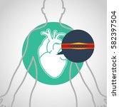 cardiac catheterization vector... | Shutterstock .eps vector #582397504