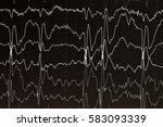 eeg brain wave on  black... | Shutterstock . vector #583093339