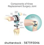 components of knee replacement... | Shutterstock .eps vector #587593046