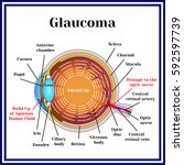 normal vision. glaucoma.... | Shutterstock .eps vector #592597739