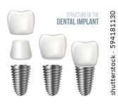realistic dental implant... | Shutterstock .eps vector #594181130