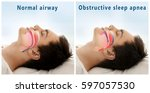 Small photo of Snore problem concept. Illustration of normal airway and obstructive sleep apnea