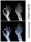 x ray hand and finger  process... | Shutterstock . vector #598413878