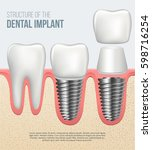realistic healthy tooth and... | Shutterstock .eps vector #598716254