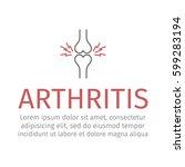 arthritis line icon. vector... | Shutterstock .eps vector #599283194