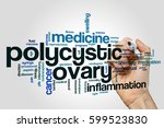 polycystic ovary word cloud... | Shutterstock . vector #599523830