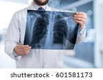 doctor looking chest x ray film. | Shutterstock . vector #601581173