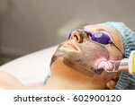 carbon face peeling. laser... | Shutterstock . vector #602900120