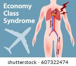 economy class syndrome... | Shutterstock .eps vector #607322474