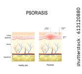 psoriasis. human skin layer... | Shutterstock . vector #613120880