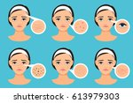 female face with skin problems...   Shutterstock .eps vector #613979303