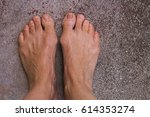 Bare Feet With Bunions Or...