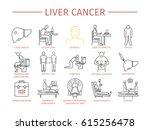 liver cencer symptoms. causes.... | Shutterstock . vector #615256478