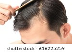 young man serious hair loss... | Shutterstock . vector #616225259
