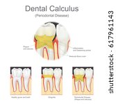 dental calculus is the...   Shutterstock .eps vector #617961143