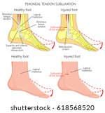 vector illustration of peroneal ... | Shutterstock .eps vector #618568520