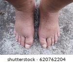 two swollen legs with fungal... | Shutterstock . vector #620762204