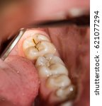 Small photo of Sick tooth with dental caries