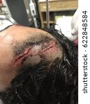 Open Wound Of Skull Suture...