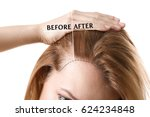 woman before and after hair... | Shutterstock . vector #624234848