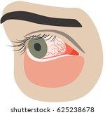 chronic conjunctivitis eye with ...   Shutterstock .eps vector #625238678