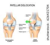patellar dislocation. normal... | Shutterstock . vector #626421704