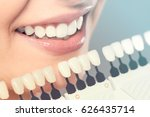 Small photo of Beautiful smile and white teeth of a young woman. Matching the shades of the implants or the process of teeth whitening.
