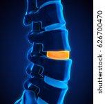human spine disc degenerative.... | Shutterstock . vector #626700470