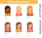 pigmentation disorders. ... | Shutterstock .eps vector #627257618