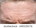 men's forehead wrinkles and... | Shutterstock . vector #630120176