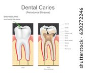 dental caries is the scientific ... | Shutterstock .eps vector #630272246