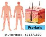 diagram showing psoriasis in... | Shutterstock .eps vector #631571810