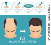 male hair loss treatment with... | Shutterstock .eps vector #633355610