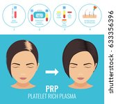 platelet rich plasma injection... | Shutterstock .eps vector #633356396