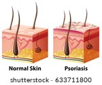 human skin diagram with normal... | Shutterstock .eps vector #633711800
