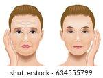 facial wrinkles treatment... | Shutterstock .eps vector #634555799