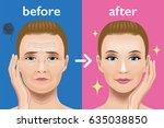 facial wrinkles treatment...   Shutterstock .eps vector #635038850