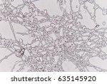 yeast cells in urine sample. | Shutterstock . vector #635145920