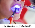 a male dentist is filling the...   Shutterstock . vector #637494013
