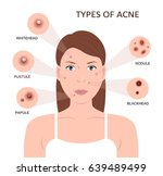 types of acne. girl with skin... | Shutterstock . vector #639489499
