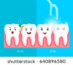 teeth with dental floss for... | Shutterstock .eps vector #640896580