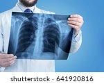doctor look x ray. | Shutterstock . vector #641920816